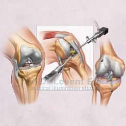 Knee_arthroscopy_and_ACL_repair_medical_art