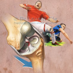 ACL tear in football