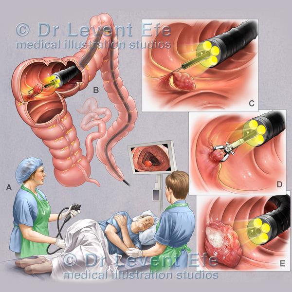 Colonoscopy Dr Efes Medical Art Store Medical Illustrations And