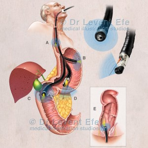 Endoscopic Ultrasound_Gastrointestinal
