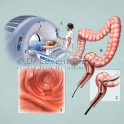 Virtual colonoscopy