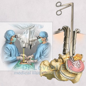 Microdiscectomy_disc removal with rongeurs