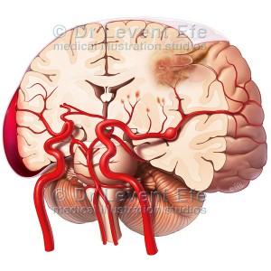 Brain & Stroke