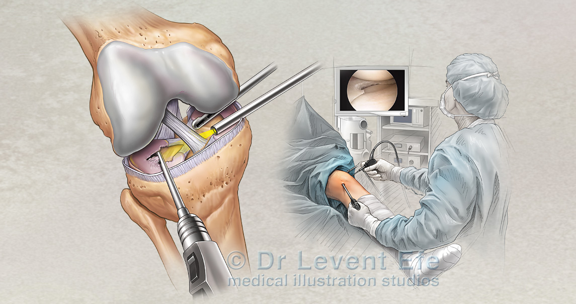 knee arthroscopy and meniscus repair