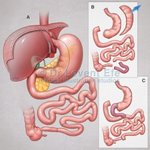Ileal interposition with diverted sleeve gastrectomy