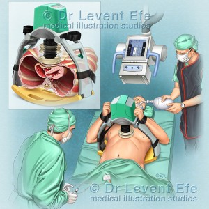 LUCAS Chest Compression-Patient heart massage