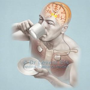 Deep brain stimlation