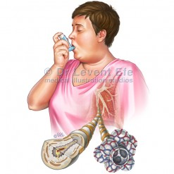 Obesity and asthma