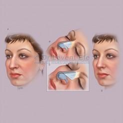 Nasoplasty