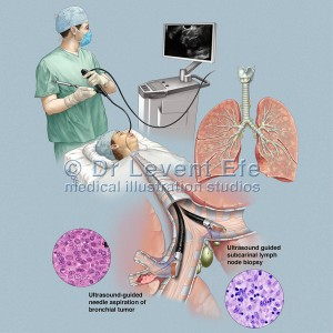 Transbronchial needle aspiration