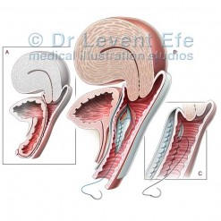 Anterior_vaginal_wall_repair_surgical_illustration