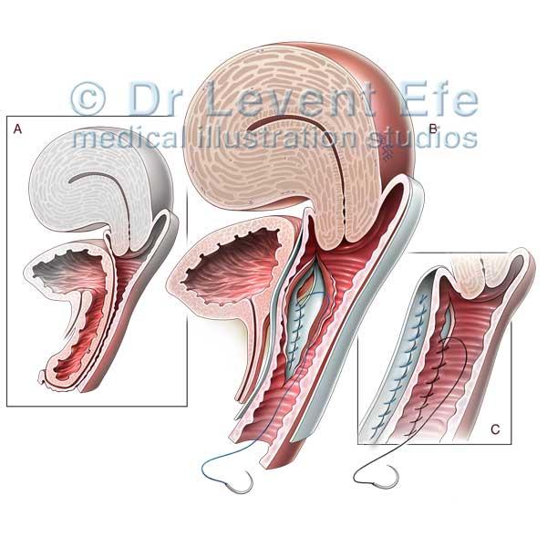 급성림프구성백혈병  중심 정맥관