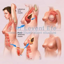 Reconstructive-breast-surgery_surgical_illustration