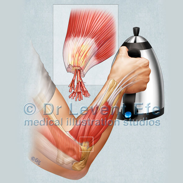 Tennis Elbow Dr Efes Medical Art Store Medical Illustrations