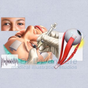 Botox-injection_strabismus_medical_illustration
