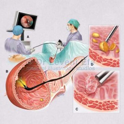 Cystoscopy_medical_illustration