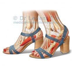 Feet_and_ankles_in_high_heels_medical_illustration