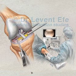 Knee-arthroscopy-meniscus-repair_medical_illustration