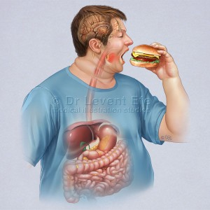 Obese_man_eating_medical_illustration