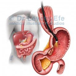 Stomach_cancer_medical_illustration
