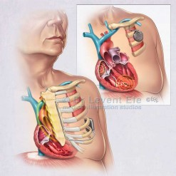 Subcutaneous-implantable-defibrillator-_medical_illustration