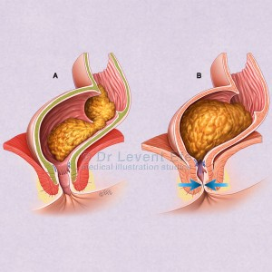 Anal_sphincters_medical_illustration