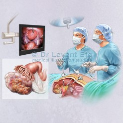 Laparoscopic_ovarian_resection_medical_illustration