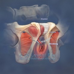 MiniSling_medical_illustration