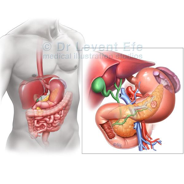 Pancreatic Cancer Dr Efes Medical Art Store Medical