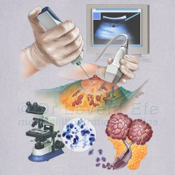Fine_needle_aspiration_biopsy_medical_illustration