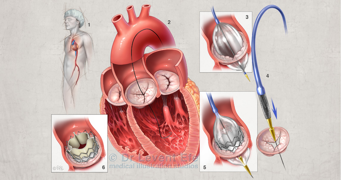 Transcatheter aortic valve insertion