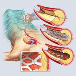 Coronary_artery_stent_medical_illustration