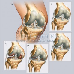 ORT06_Normal_knee_and_Osteoarthritis_WM