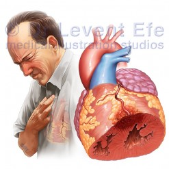 Myocardial-infarct_WM