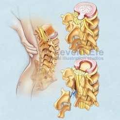 NS04_Back-pain-and-Lumbar-laminectomy_WM